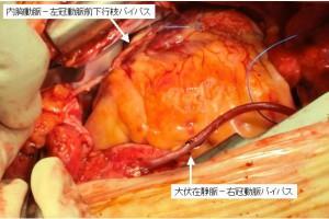 冠状動脈バイパス術