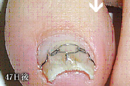 巻き爪治療後