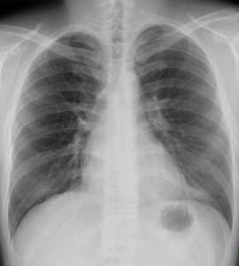 胸部レントゲンNo2
