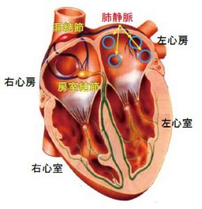 心房 細 動 手術