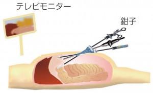 腹腔鏡のイメージ